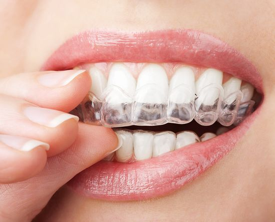 Teeth whitening mouth tray